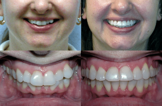 Before and After Orthodontics by Dr. Ken Lawrence Mentor OH